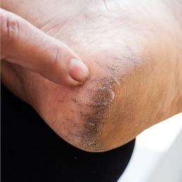 fjernelse af hård hud under fødderne